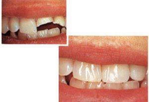 эстетические реставрации зубов